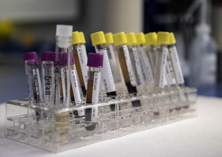 За сутки в Беларуси зарегистрированы 1272 пациента с COVID-19, выписаны 1379