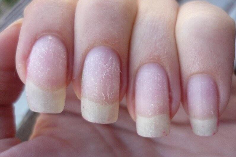 9 советов, которые помогут восстановить ногти после гель-лака
