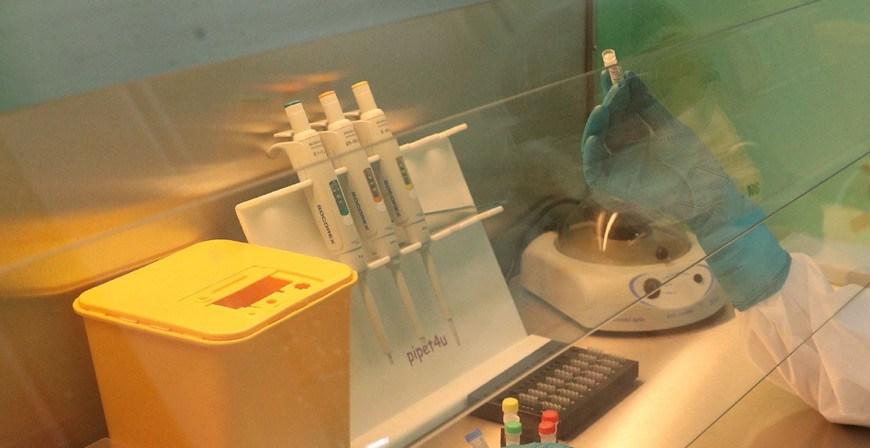 Иммунитет против коронавируса у переболевших может сохраняться в течение года